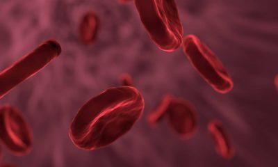World Hemophilia Day 2021, what is hemophilia, hemophilia risks, hemophilia treatment, understanding hemophilia, rare blood disorder, indian express news