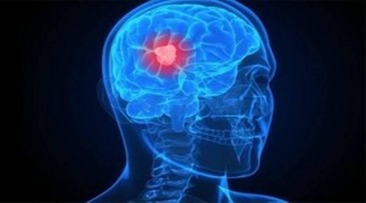 Día mundial del tumor cerebral: conozca las causas, los síntomas y el tratamiento