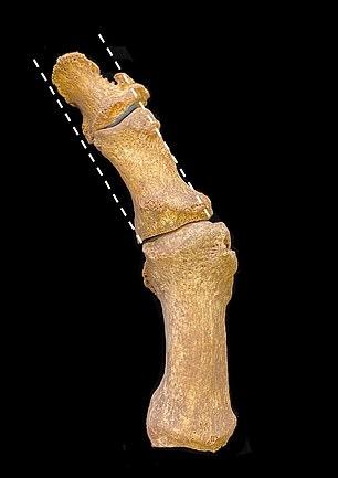 Los investigadores de Cambridge creen que un cambio en el estilo de los zapatos durante el siglo XIV, de una punta redondeada a una punta larga y puntiaguda, provocó un aumento en el hallux valgus