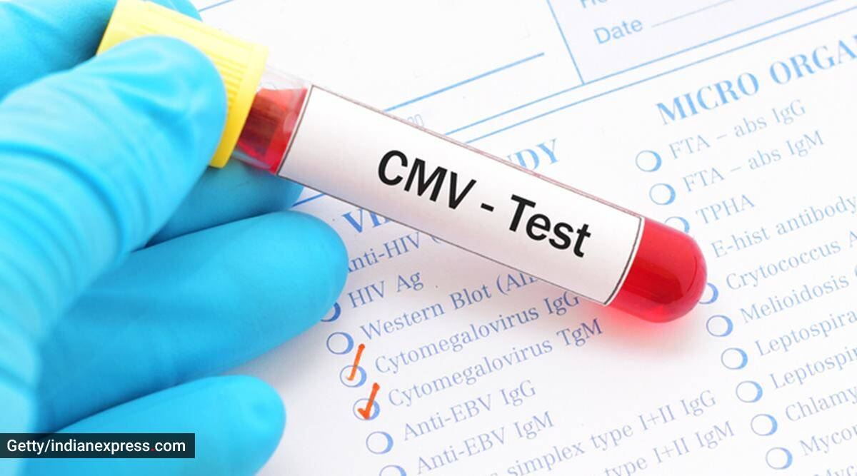 cytomegalovirus, what is cytomegalovirus, the risks of cytomegalovirus, what causes cytomegalovirus, cytomegalovirus and immunity, cytomegalovirus and Covid infection, cytomegalovirus in Covid-19, health, indian express health news