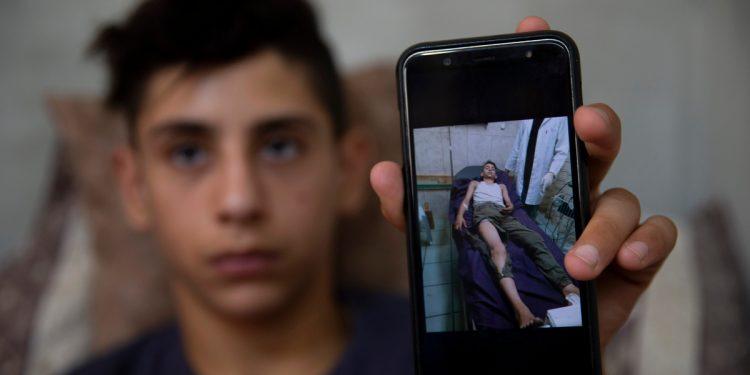 Adolescente palestino describe brutal ataque de colonos israelíes