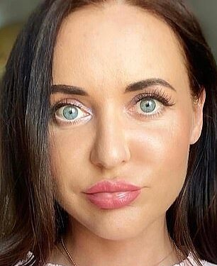 Antes: Svetlana, de 37 años, de Rusia, reveló que 'perdió la cara' en las horas y días posteriores a someterse a un tratamiento de belleza.